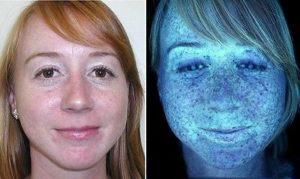 Huidbehandeling Almere, de kleuren tijdens de huidscan